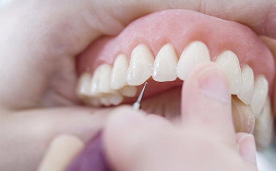 Prothèses dentaires sur-mesure Nice